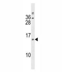 DUSP13 antibody western blot analysis in A2058 lysate
