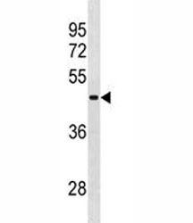RBMY1A1 antibody western blot analysis in NCI-H292 lysate.