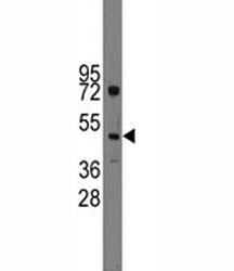 Western blot analysis of Ihh antibody and HL-60 lysate