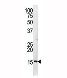 Western blot analysis of Histone H3 antibody and HepG2 lysate
