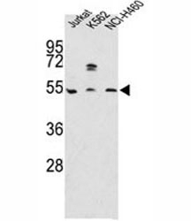Western blot analysis of APOA4 antibody and Jurkat, K562, NCI-H460 lysate. Predicted molecular weight: ~45 kDa.