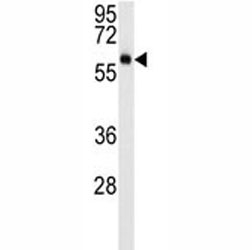 AKT3 western blot analysis in mouse NIH3T3 lysate (15ug/lane). Predicted molecular weight: ~56kDa but can be observed from 60~65kDa.