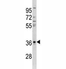 Anti-CTGF antibody western blot analysis in A549 lysate. Predicted/observed molecular weight ~38kDa.