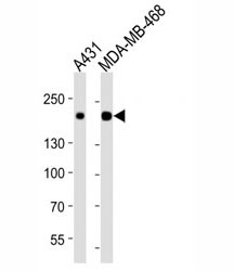 Western blot analysis of lysate from A431, MDA-MB-468 cell line (left to right) using EGFR antibody at 1:1000 for each lane. Expected molecular weight: ~134/170 kDa (unmodified/glycosylated).