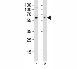 Western blot analysis of lysate from (1) HT29 and (2) Jurkat cell line using anti-Src antibody at 1:1000.