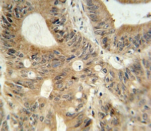 ABCC3 antibody immunohistochemistry analysis in formalin fixed and paraffin embedded human colon carcinoma.