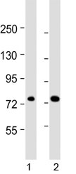ABCD1 antibody western blot analysis in human 1) 293/T17 and 2) HL-60 lysate. Predicted molecular weight ~83 kDa.