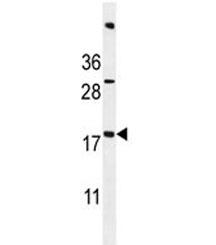 ACN9 antibody western blot analysis in mouse bladder tissue lysate. Predicted molecular weight ~15 kDa.