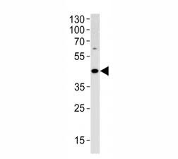 ADA antibody western blot analysis in HL-60 lysate. Expected/observed molecular weight ~41 kDa.