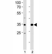 ATF4 antibody western blot analysis in (1) Jurkat and (2) MCF-7 lysate. Predicted molecular weight ~39kDa.