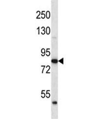 ABTB2 antibody western blot analysis in human K562 lysate. Predicted molecular weight ~114/93 kDa (isoforms 1/2).