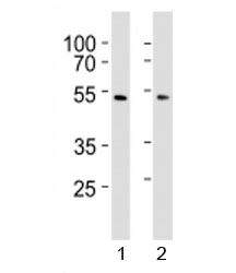 Western blot analysis of lysate from 1) HepG2 and 2) HUVEC cell line using SUV39H2 antibody at 1:1000.