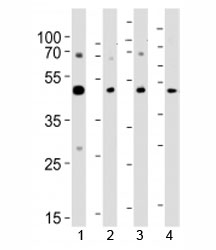 Western blot analysis of lysate from 1) A431, 2) K562, 3) CEM cell line and 4) rat brain tissue using SUV39H2 antibody at 1:1000.