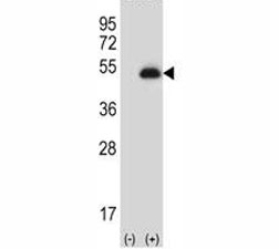 Western blot analysis of anti-PAX6 antibody and 293 cell lysate (2 ug/lane) either nontransfected (Lane 1) or transiently transfected (2) with the PAX6 gene. Predicted molecular weight ~48kDa.