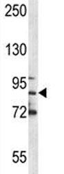 MPO antibody western blot analysis in NCI-H460 lysate. Expected molecular weight: 75-90 kDa (pro form), 150+ kDa (glycosylated mature form).