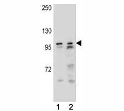 AR antibody western blot analysis in (1) NCI-H292, and (1) NCI-H460 lysate. Predicted molecular weight ~99kDa.