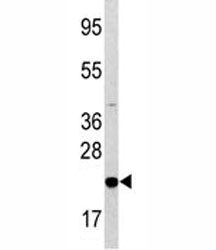 Western blot analysis of Bad antibody and HL-60 lysate. Predicted molecular weight: 19-23 kDa