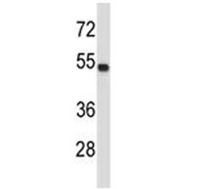 TUBA4A antibody western blot analysis in MDA-MB435 lysate.