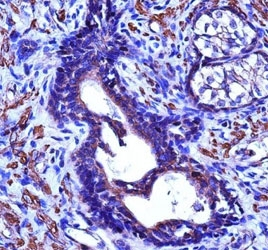 ACTG2 antibody immunohistochemistry analysis in formalin fixed and paraffin embedded human prostate cancinoma.