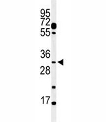 Western blot analysis of PHO3 antibody and mouse testis tissue lysate.