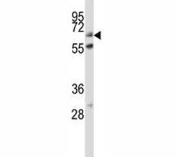 ALP antibody western blot analysis in HeLa lysate