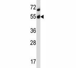 Akt2 antibody western blot analysis in MCF-7 lysate. Predicted molecular weight: ~56kDa.