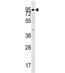 ABP1 antibody western blot analysis in human K562 lysate. Predicted molecular weight ~85 kDa.