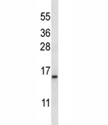 BAFF antibody western blot analysis in K562 lysate. Expected molecular weight ~19kDa.