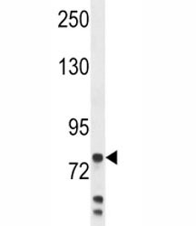 Anti-Myeloperoxidase antibody western blot analysis in MDA-MB231 lysate. Expected molecular weight: 75-90 kDa (pro form), 150+ kDa (glycosylated mature form).