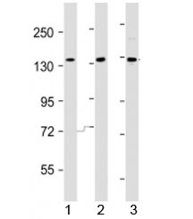 Western blot testing of AATK antibody at 1:2000 dilution. Lane 1: HeLa lysate; 2: HepG2 lysate; 3: A549 lysate; Predicted band size : 145 kDa.