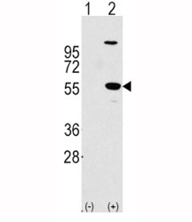 Western blot analysis of ALDH1A1 antibody and 293 cell lysate (2 ug/lane) either nontransfected (Lane 1) or transiently transfected with the ALDH1A1 gene (2).