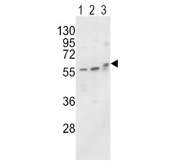 Western blot analysis of ALP / Alkaline Phosphatase antibody and MCF-7 (lane 1), HL-60 cell line (2) and mouse brain tissue (3) lysate. Predicted molecular weight ~57 kDa, but can be observed at up to ~75 kDa due to glycosylation.