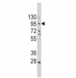 Western blot analysis of anti-E Cadherin antibody and A375 lysate. Expected molecular weight: 135 kDa (precursor), 80-120 kDa (mature, depending on gylcosylation level).