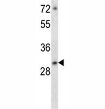 ATF5 antibody western blot analysis in MCF-7 lysate. Predicted molecular weight: ~31kDa.