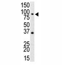 Western blot analysis of anti-TLR4 antibody and mouse spleen cell lysate
