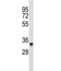 Aurkb antibody western blot analysis in Ramos lysate. Predicted molecular weight: 33-39 kDa.