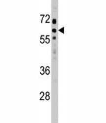 SOCS7 antibody western blot analysis in HeLa lysate.