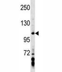 AXIN1 antibody western blot analysis in MDA-MB453 lysate. Predicted molecular weight: 95-110 kDa.