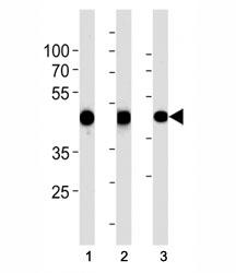 ACTA1 antibody western blot analysis in human normal (1)  uterus and (2) placenta and (3) rat heart tissue lysate