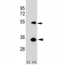 Western blot analysis of ATG5 antibody and 293 cell lysate (2 ug/lane) either nontransfected (Lane 1) or transiently transfected (2) with the human gene. Predicted molecular weight ATG5: ~32 kDa; ATG5/ATG12 heterodimer: ~56 kDa.