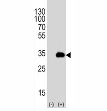 Western blot analysis of ATG-5 antibody and 293T cell lysate either nontransfected (Lane 1) or transiently transfected (2) with the human gene. Predicted molecular weight ATG5: ~32 kDa; ATG5/ATG12 heterodimer: ~56 kDa.