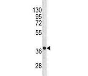 Anti-CXCR4 antibody western blot analysis in NCI-H460 lysate. Predicted molecular weight ~40 kDa.