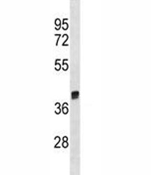 Arg1 antibody western blot analysis in rat liver tissue lysate. Predicted molecular weight ~35kDa.