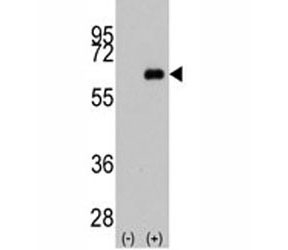 Western blot analysis of anti-c-Myc antibody and 293 cell lysate (2 ug/lane) either nontransfected (Lane 1) or transiently transfected with the MYC gene (2).