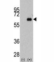 Western blot analysis of anti-Myc antibody and 293 cell lysate (2 ug/lane) either nontransfected (Lane 1) or transiently transfected with the MYC gene (2).