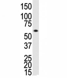 Western blot analysis of ALK3 antibody and human Saos-2 cell lysate. Predicted molecular weight ~60 kDa.