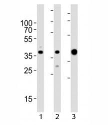 Western blot analysis of lysate from 1) MCF-7, 2) HeLa cell line and 3) human skeletal muscle tissue lysate using ALDOA antibody at 1:1000. Predicted molecular weight ~40 kDa.
