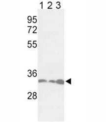 Western blot analysis of anti-PCNA antibody and 1) Jurkat, 2) HeLa, and 3) 293 lysate. Predicted molecular weight ~29kDa, routinely observed at 29~36kDa.