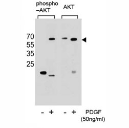 Western blot analysis of extracts from NIH3T3 cells, untreated or treated with PDGF, using phospho-AKT antibody (left) or nonphos-AKT antibody (right).