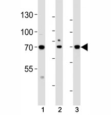 Western blot analysis of lysate from (1) HeLa, (2) HepG2 and (3) human placenta tissue lysate using ATF6 beta antibody at 1:1000. Predicted molecular weight: 75~90kDa.